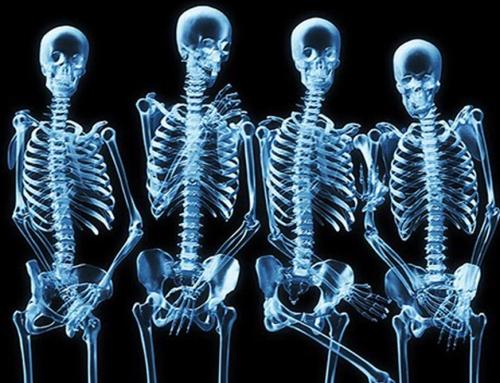 5 ideias para deixar seu esqueleto imbatível